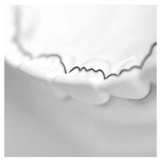 Aufklärungsbogen - Memotain
